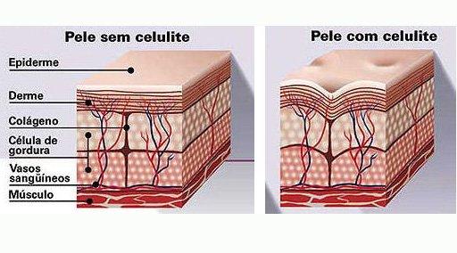 Afinal, o que é Celulite? Celulite
