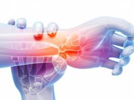 tendoes-inflamados-tendinite