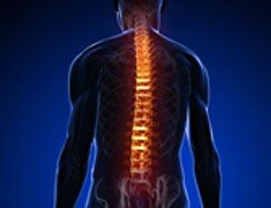 Tecnologia para o Alivio da Dor:Saiba tudo sobre hernia de disco