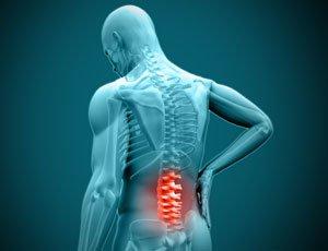 Tecnologia para o Alivio da Dor: Como evitar a lombalgia aguda