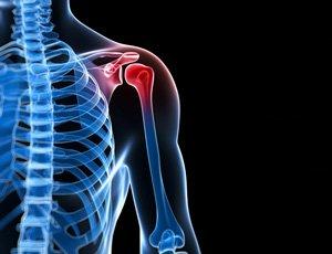 controle da dor, alivio da dor, controle das dores, alivio das dores, dor cronica, dor lombar, dor nas costas