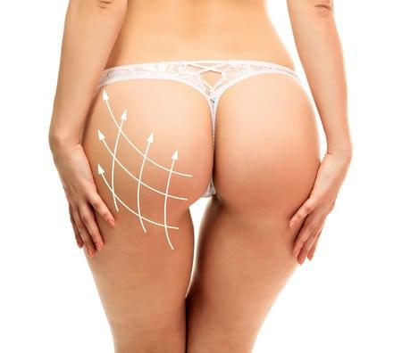 Conquiste o bumbum perfeito Celulite Dermatologia Glúteos