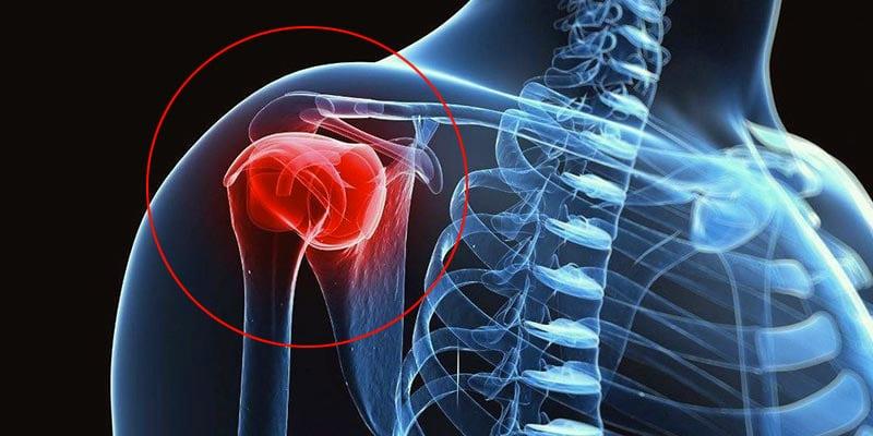tendinite ombro tratamento exercicios