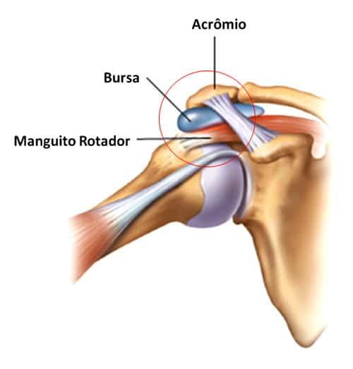 Alongamentos para a bursite do ombro Exercícios Saúde de A a Z