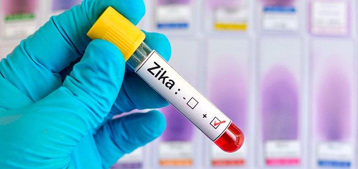 Microcefalia: remédio pode evitar transmissão do Zika para bebê Saúde de A a Z