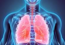 Pulmão, Pneumonia.